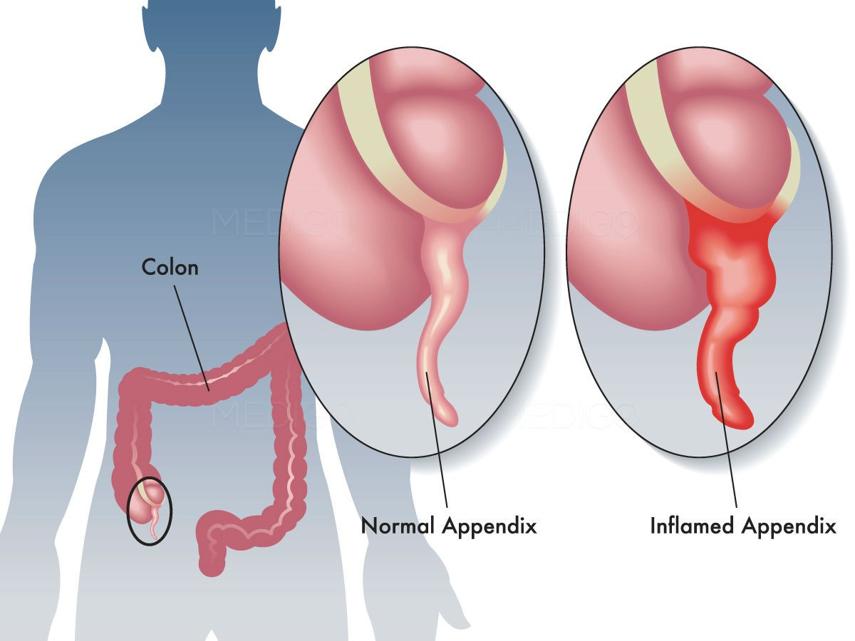 Appendectomy Surgery Treats Inflamed and Ruptured Appendix - MCBody ...