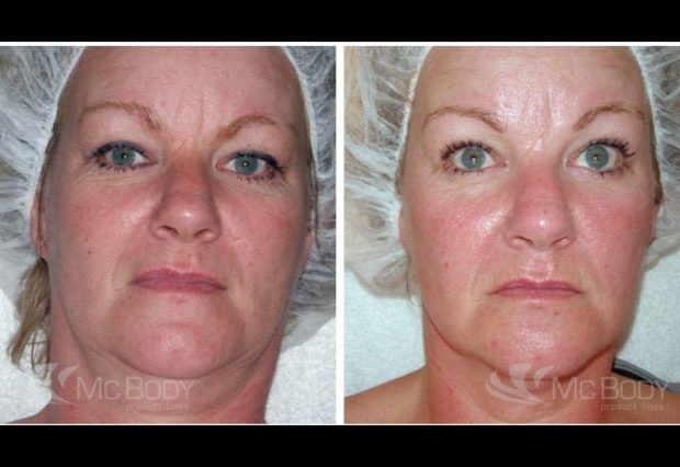 before-after-mcbody