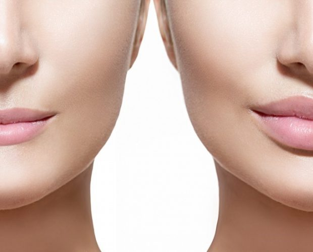 DERMAL FILLERS (LIP AUGMENTATION)