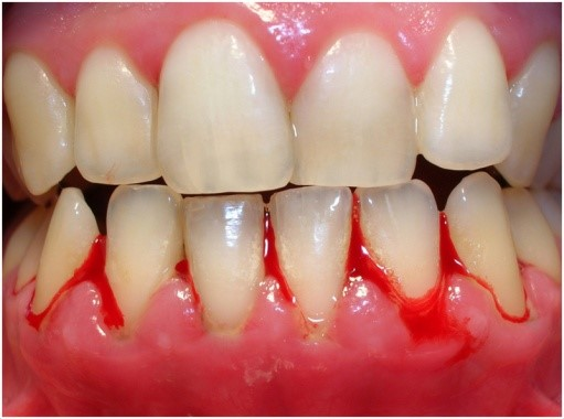 Gingival-Disease-Treatment