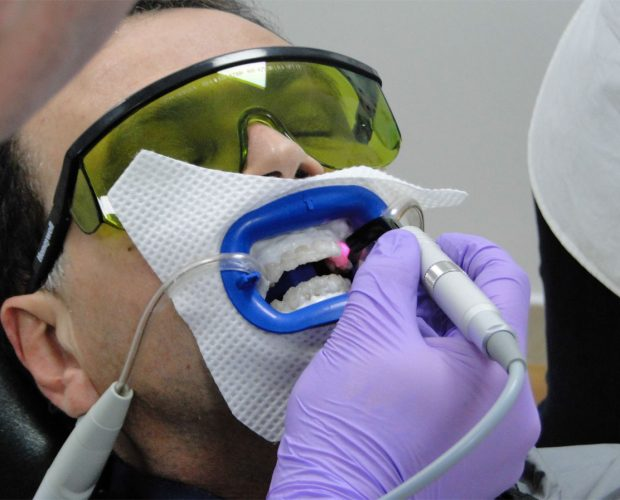Laser-in-Dentistry